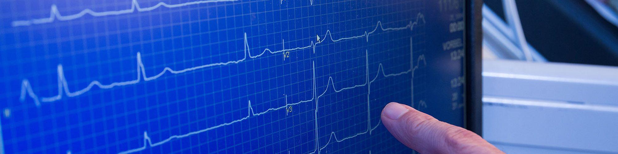 Monitor zeigt EKG an