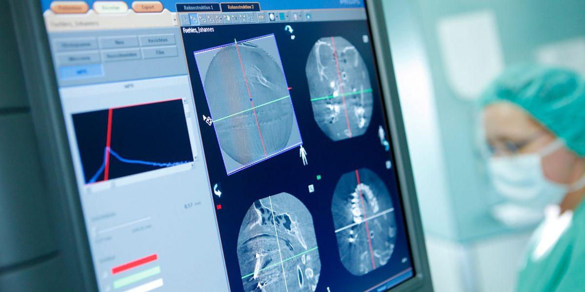 Röntgenaufnahmen eines Schädels